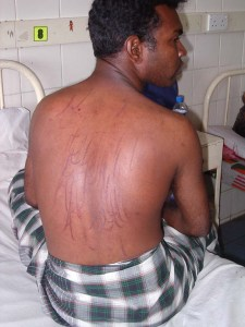Torture victim - Sri Lanka | File foto