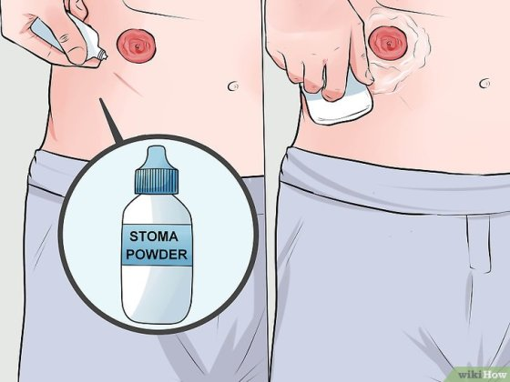 Immagine titolata Change a Colostomy Bag Step 6