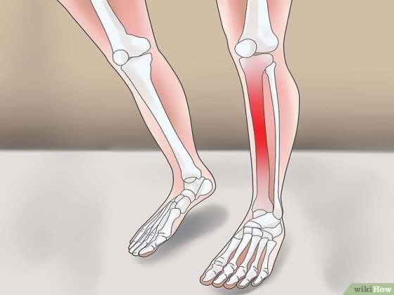 Immagine titolata Remember Signs and Symptoms of Electrolyte Imbalances Step 6