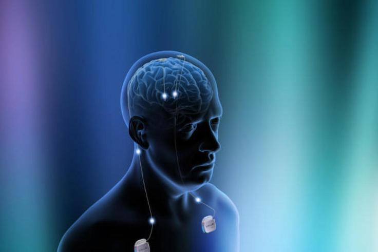 Deep-brain-stimulation-depressie-werking-2