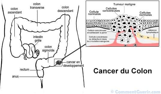 les m canismes digestifs le colon 1 2 anatomie thanatofrance ecoles et pr paration. Black Bedroom Furniture Sets. Home Design Ideas