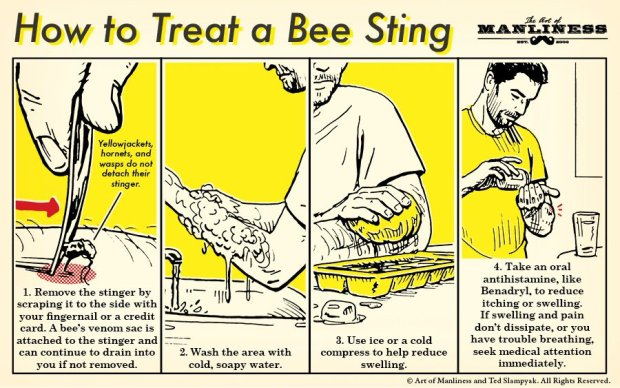 treat-a-bee-sting