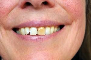 Why Do Teeth Turn Yellow?
