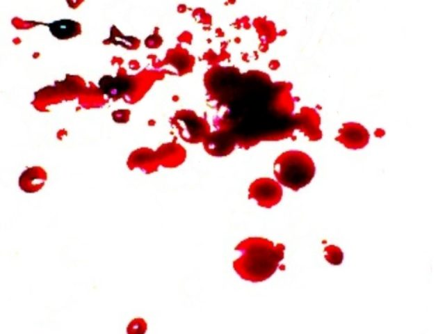 Knife Dripping Blood Background