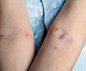 Contact Dermatitis – What it Truly is and Treating It