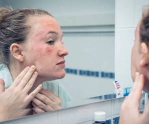 What Is The Difference Between Eczema and Contact Dermatitis