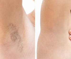 Getting the Facts Straight About Laser Hair Removal