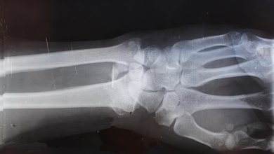 Photo of Carbon fibre technology to treat broken bones gets funding