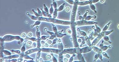 Inoculantes microbianos mejoran la humificación del compost