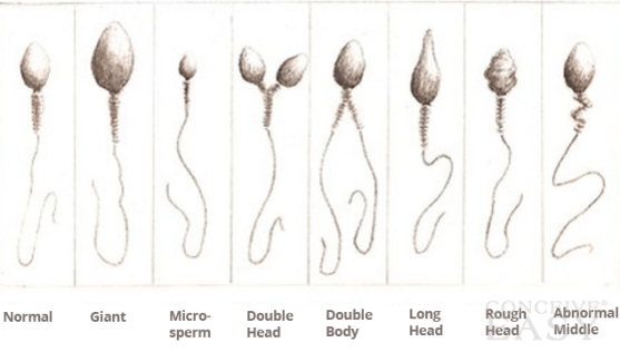 sperm motility issue