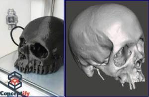Scann et impression 3D d'un crâne humain