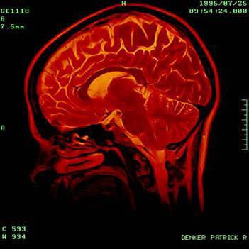 The Brain. Photo: Flickr, Patrick Denker