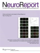 NeuroReport 25 (15) 2014