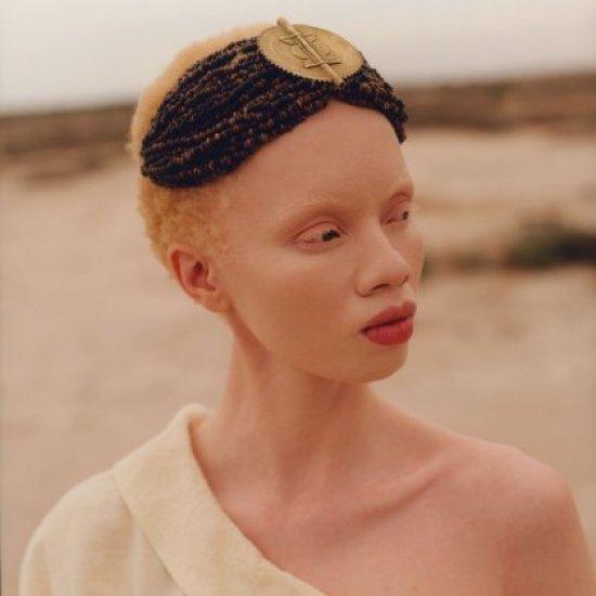 23055e02a Pela primeira vez: Vogue tem modelo albina na capa - Conexão Boas ...