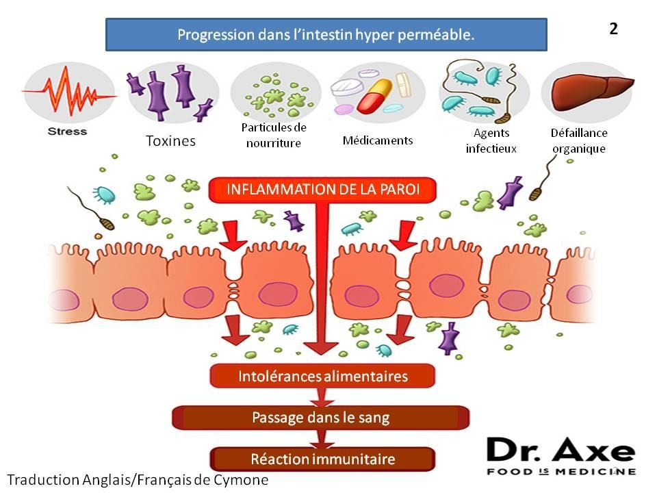 inflammation de la paroi intestinale