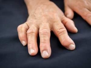 Comment prévenir et traiter l'arthrose des mains