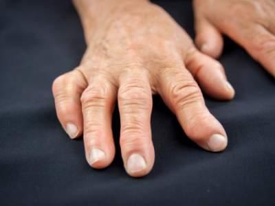 Comment prevenir et traiter arthrose des mains