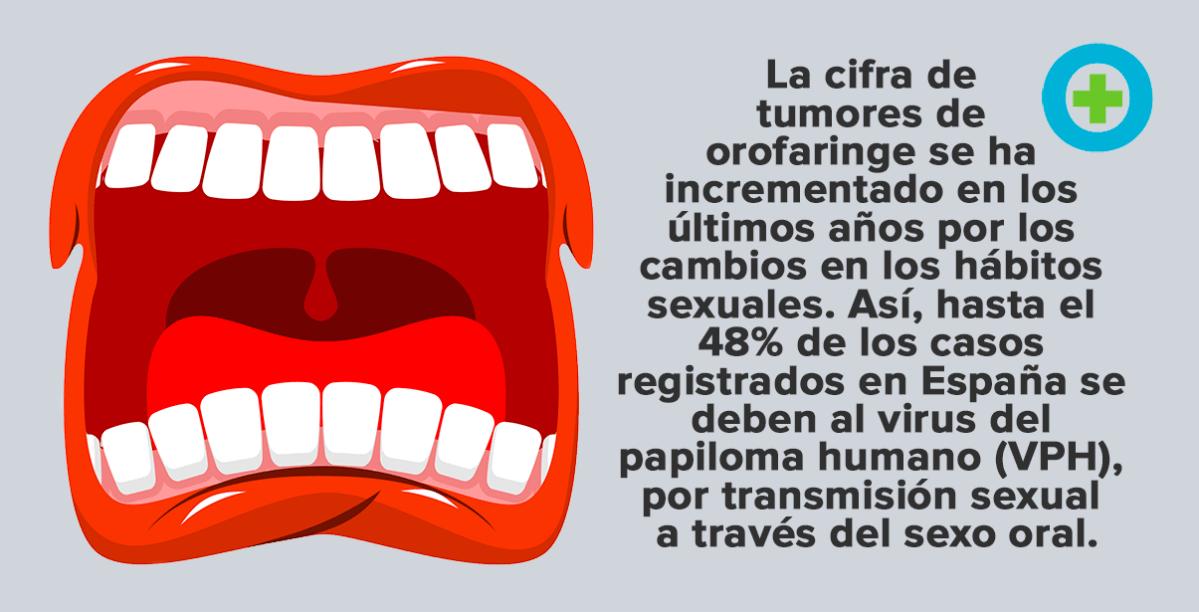cancer de orofaringe