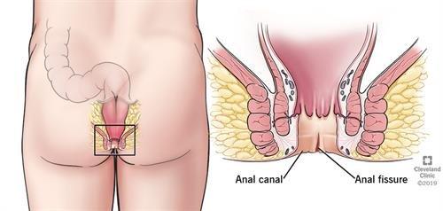 ¿Qué es la fisura anal y qué la causa? Tratamiento