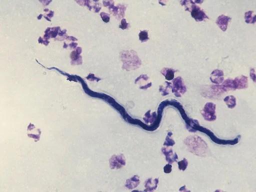 Loa microfilaria - crédits Stefan Walkowski  - licence Creative Commons (CC BY-SA 3.0)
