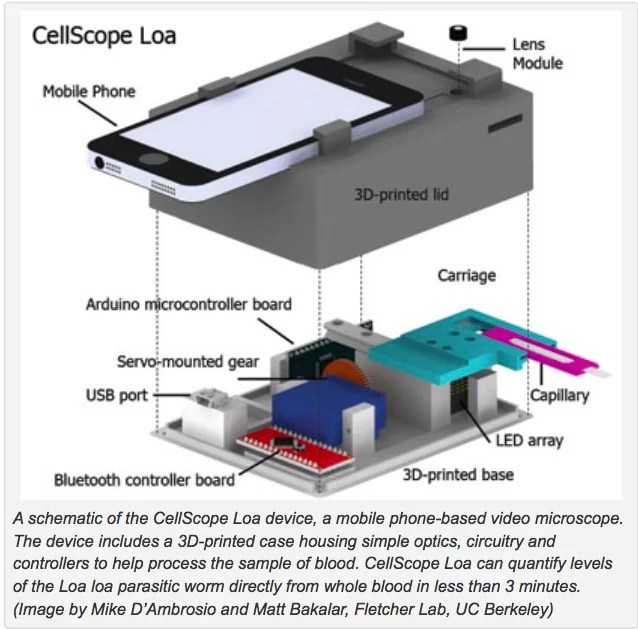 cellscope_loa_fletcher_lab_berkeley