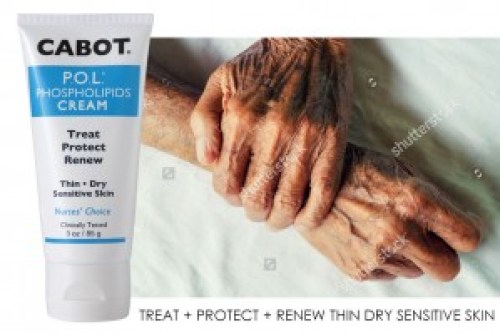 Treat Thin Dry Skin