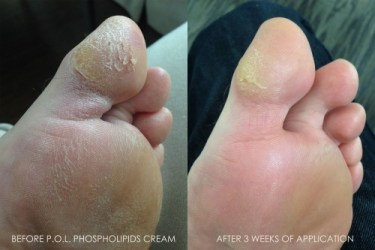 heal cracked feet