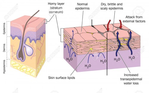 44912780-Section-through-skin-showing-normal-epidermis-and-skin-surface-structure-resulting-in-water-loss-and-Stock-Vector
