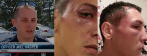 Rochester, NY Police officer Joel Hasper Punches Man, Causing Facial Fracture