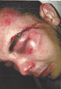 Kevin Bucker Injuries