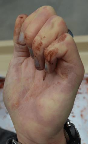 magnumslefthandatautopsy