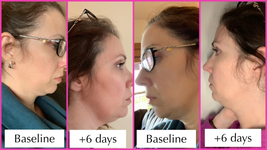Kybella recovery photos of days 3 - 7 | Copper State Style
