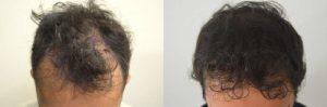 L'esperienza di Tiziano all'Istituto Helvetico Sanders di Perugia: il percorso seguito e il trapianto capelli
