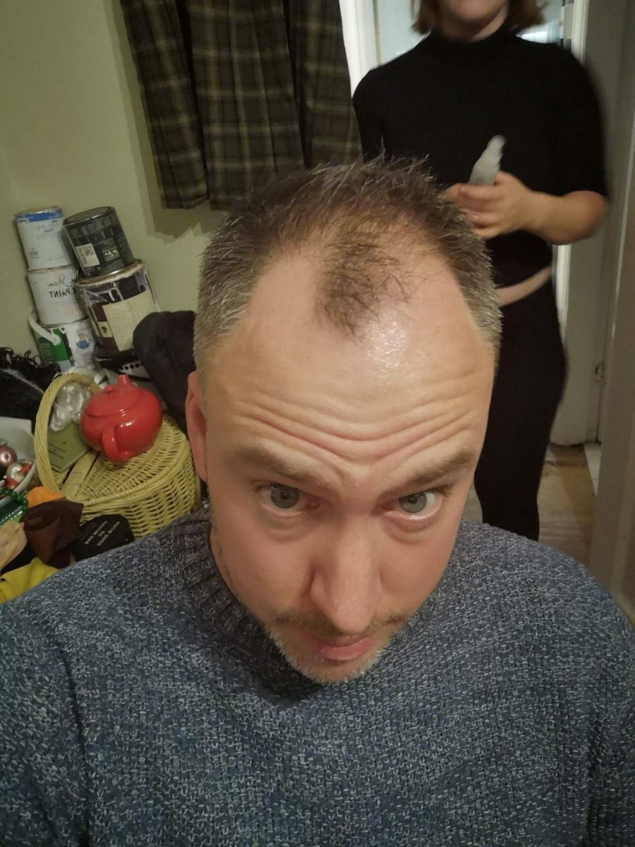 I Tried A Hair Loss Instagram Advert from Gofybr