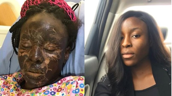 Nigerian model shares photo of incredible transformation one year of surviving a fire incident