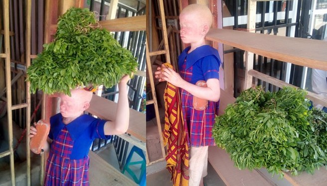 Man calls for help as he shares heartbreaking story of a little girl with albinism almost losing her sight while hawking under the sun in Abuja