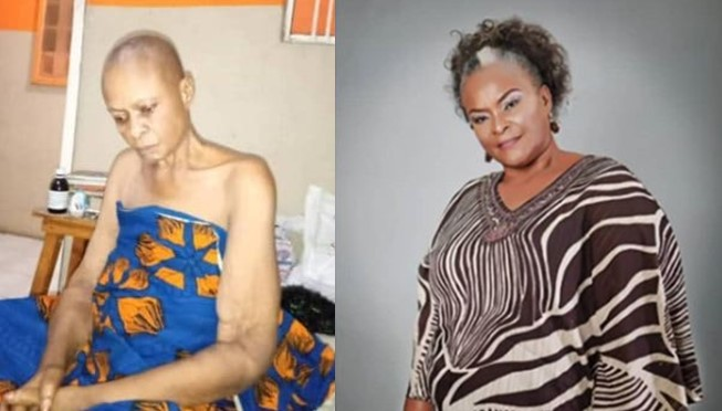 Nollywood actress, Ify Onwuemene down with cancer, seeks help from Nigerians