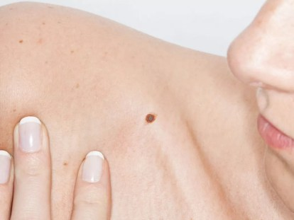 melanoma italia ricerca scientifica