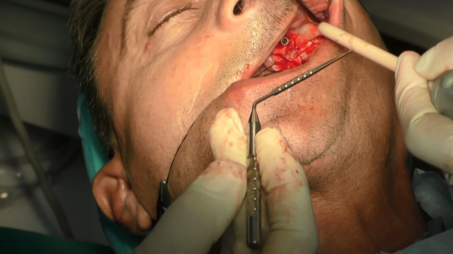 Caso clinico Zigomatici e Pterigoidei