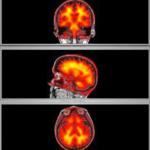 brain segmentation PET