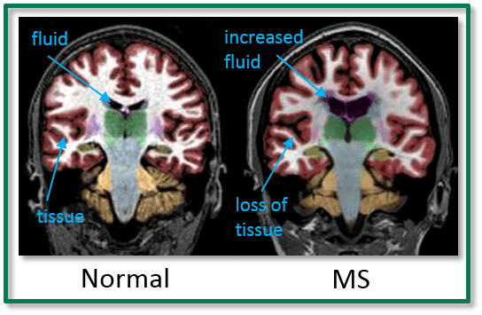 living with hope multiple sclerosis ms cortechs labs