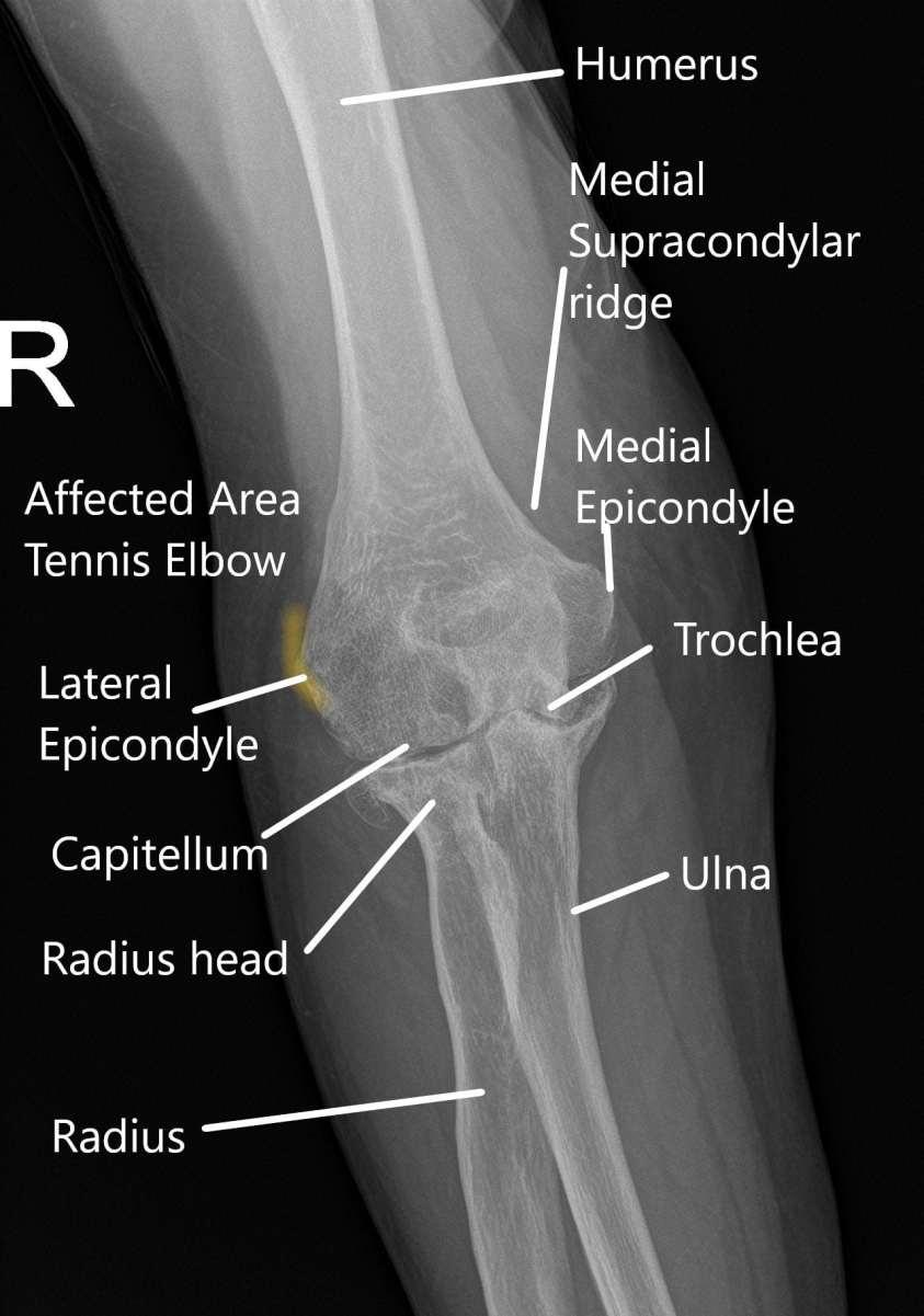Tennis Elbow - Causes & Management   Complete Orthopedics ...
