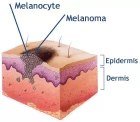 melanocyte4