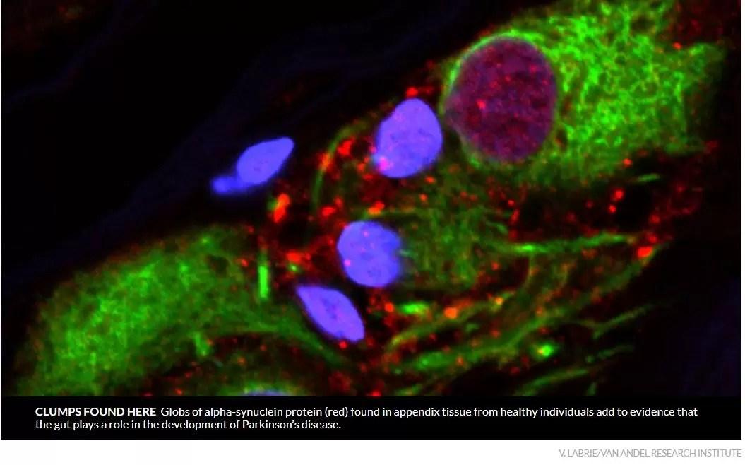 Uno studio afferma che l'appendice è implicata nella malattia di Parkinson