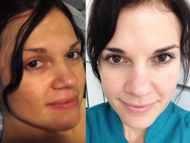 Hyperpigmentation #TransformationTuesday – Estie Claassen