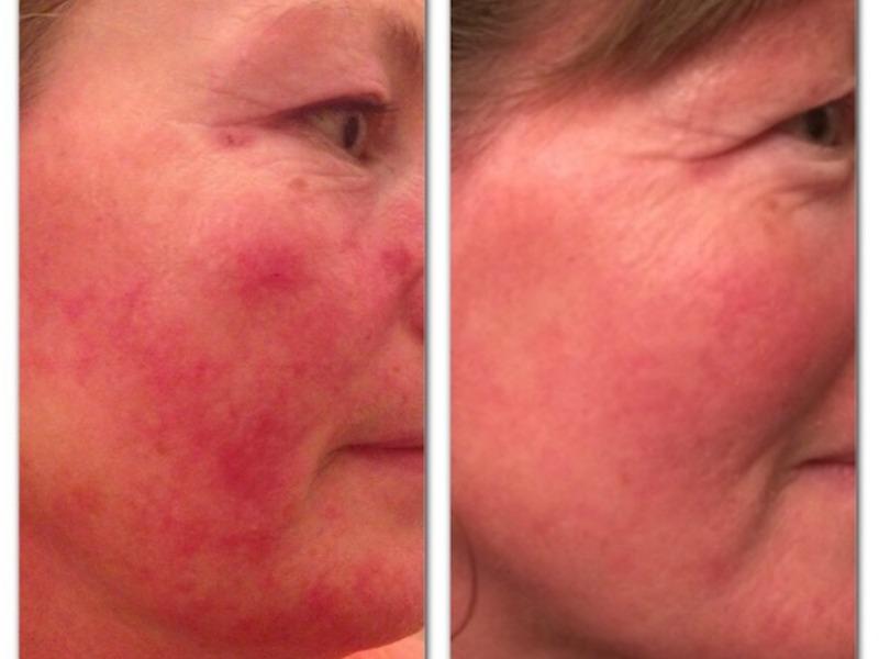 Rosacea Treatment – Christine Berney
