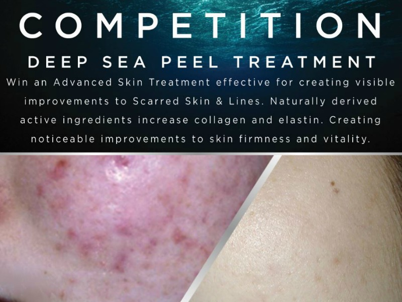 Deep Sea Peel Competition!