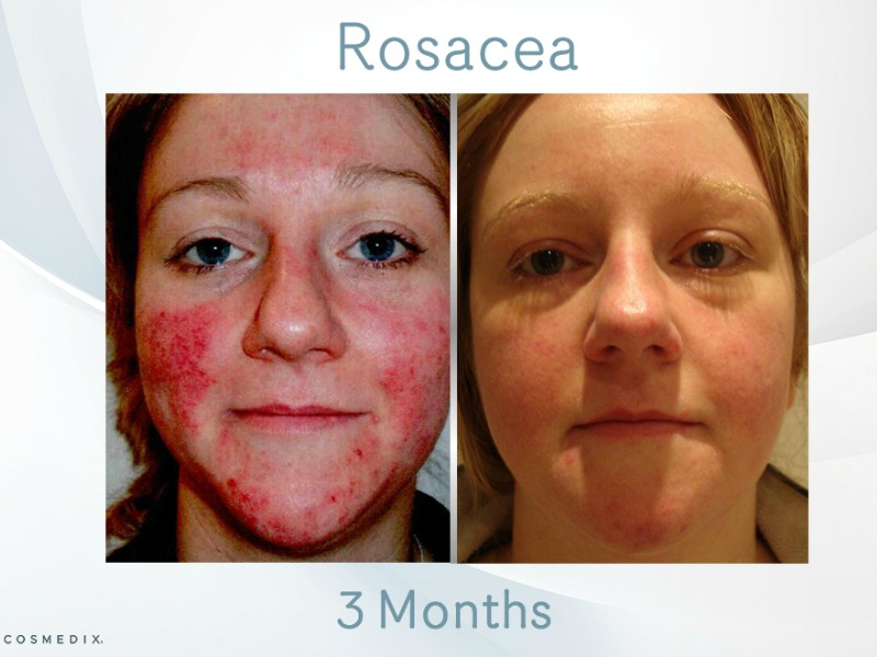 Rosacea – Transformation Tuesday
