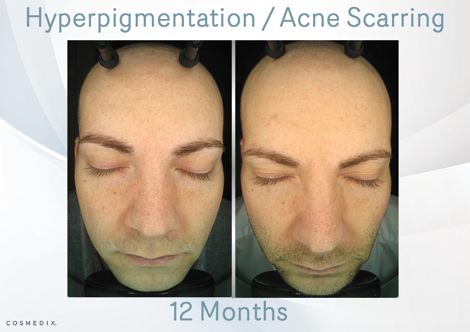 Acne-Scarring-big
