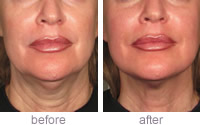 Ultherapy  neck treatment - Before & after